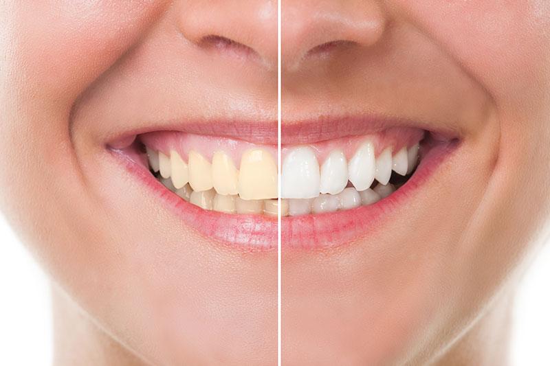 Teeth Whitening in Huntington Beach